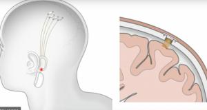 Elon Musk desarrolla chip para cerebro que trata autismo y esquizofrenia