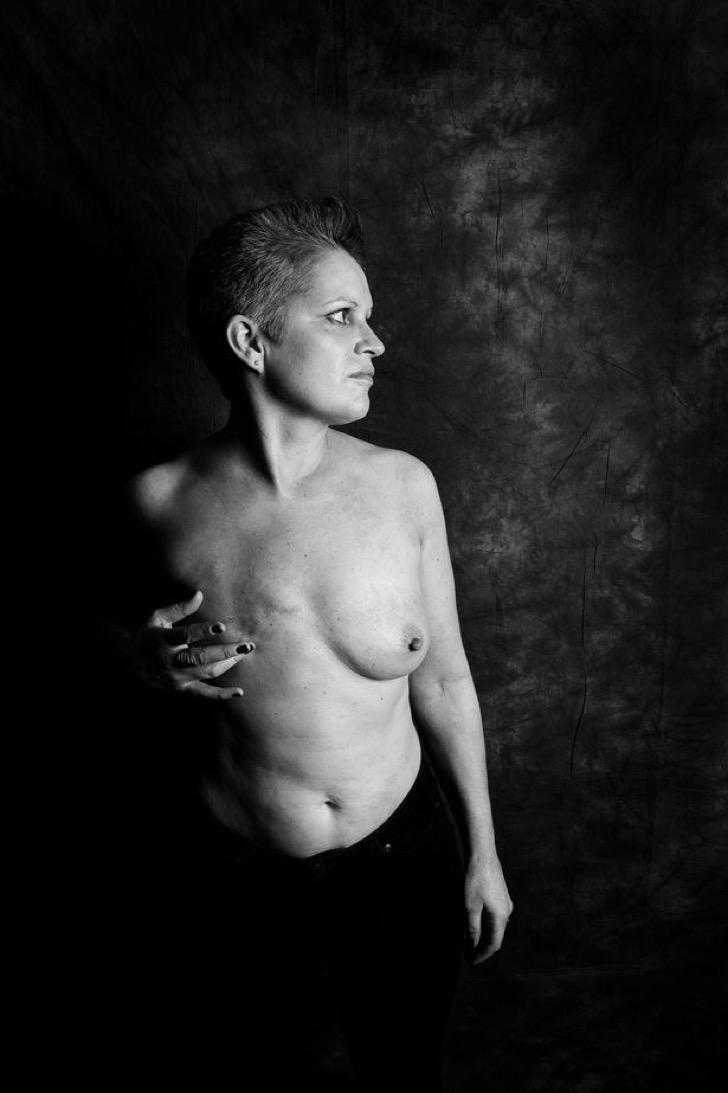 El tratamiento que desaparece los tumores de cáncer de mama