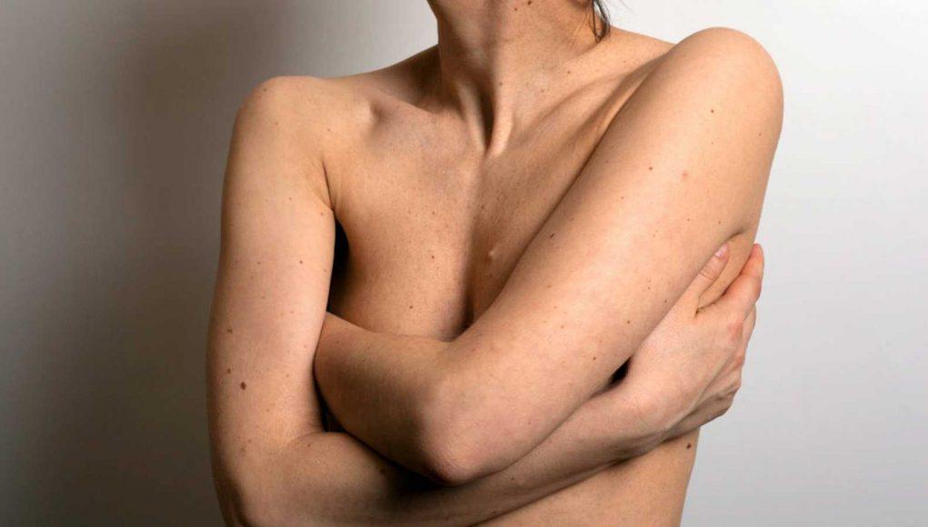 Logran un tratamiento que desaparece los tumores del cáncer de mama